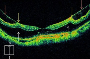 Trazione vitreo-maculare